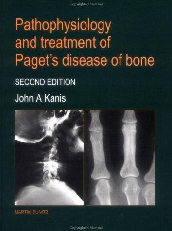Download Pathophysiology and Treatment of Pagets Disease of Bone